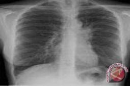 Rokok elektrik memicu radang paru-paru