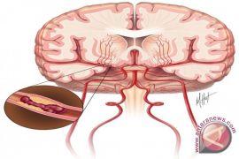 Begini cara cegah penyakit stroke