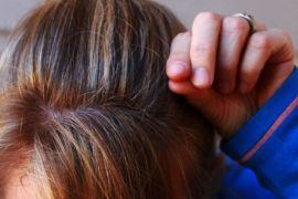 Berikut 8 penyebab rambut rontok yang tak disadari