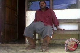 Khawatir terjangkit kaki gajah, 80.000 warga Gunung Mas diberi obat