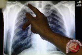 Dinkes Karimun: sepuluh orang meninggal akibat tuberkulosis