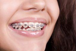 Dokter: Tidak Semua orang memerlukan venner dan kawat gigi