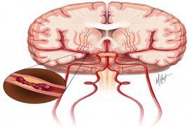 AS temukan deteksi Parkinson melalui air mata
