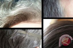 Solusi agar rambut tak cepat muncul uban