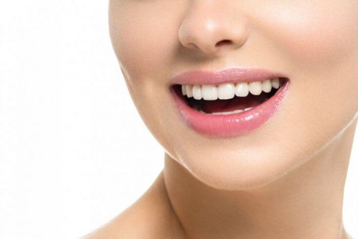 Memutihkan gigi menggunakan kunyit