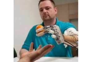 Tangan Bionik Mengembalikan Sensasi Menyentuh