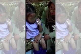 Ditemui banyak luka, bocah di Purbalingga korban penganiayaan ibu tiri