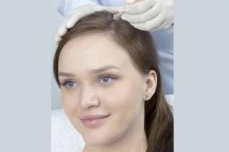 Rambut rontok bisa diatasi dengan shampo dan gingseng