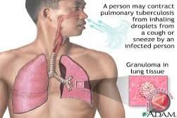 Kulon Progo lmbau masyarakat menghindari TB MDR