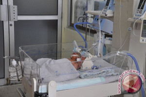 Bayi Kembar Siam Dempet Perut Berhasil Dipisahkan