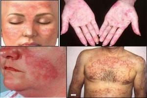 BPJS Kesehatan diharapkan tanggung obat penyakit Lupus
