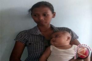 Bayi Tumor Mata di Lampung Timur Perlu Bantuan