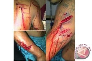 Seorang warga Jailolo diserang buaya