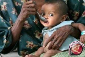 69 Anak di Kupang Gizi Buruk
