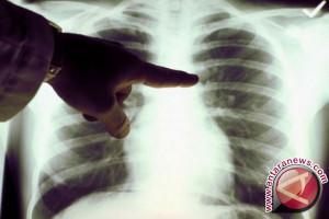 Doktor biomedik UI temukan deteksi dini kanker paru