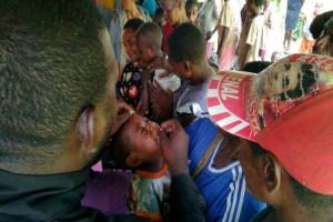Dinkes Papua sarankan Pemkab Asmat gelar imunisasi respon KLB