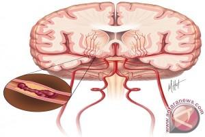 Pembuluh Darah Tersumbat Penyebab Tertinggi Stroke