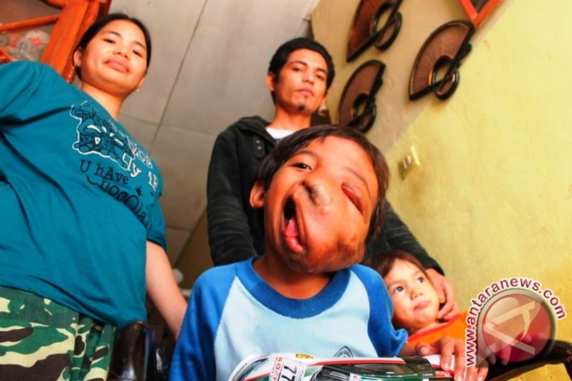 Bocah penderita tumor wajah perlu bantuan operasi