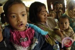 Masyarakat diajak ikuti operasi bibir sumbing gratis