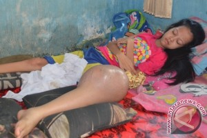 Tara penderita tumor berjuang tanpa daya