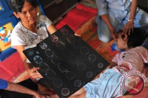 Aisyah, bocah tujuh tahun penderita lumpuh harapkan bantuan