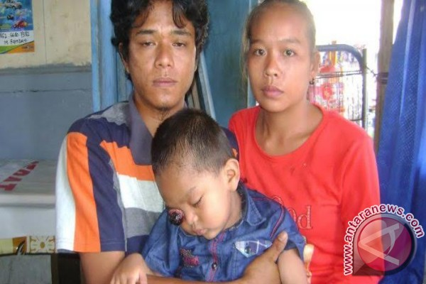 Dimar penderita tumor mata butuh bantuan dana