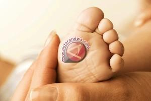 Bayi Pekanbaru berjuang lawan penyakit langka