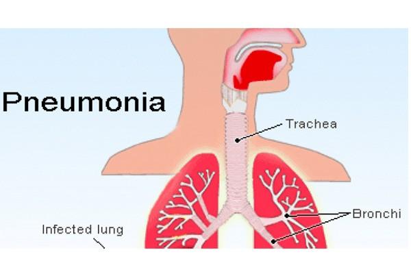 Kemenkes: Pneumonia