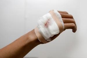Dokter: Jangan balut luka dengan kain kasa