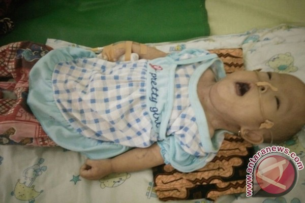 Balita penderita Gizi Buruk meninggal dunia