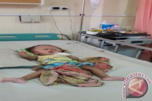 Amanda penderita hydrocephalus dijadwalkan dioperasi